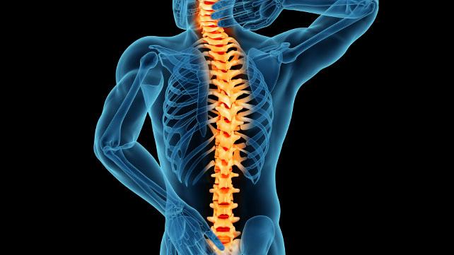 Stenosi spinale e debolezza muscolare. Stenosi vertebrale